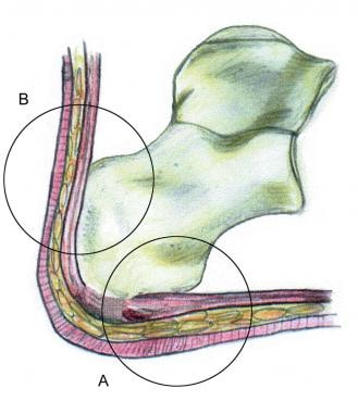 The hindfoot is composed of the talus and the calc