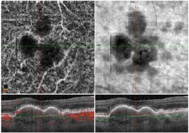 Optical coherence tomography (OCT) shows an active