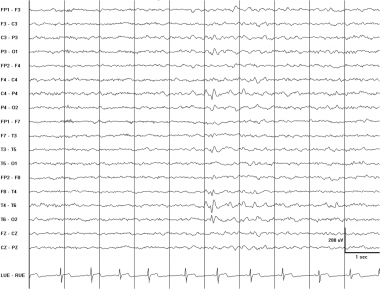 Right posterior temporal spike. This EEG is from a