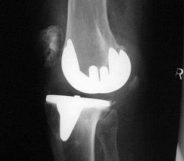 Complications of total knee arthroplasty. Dislocat