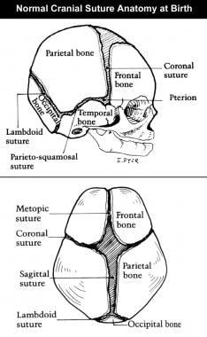 Congenital, synostoses. Normal cranial suture anat