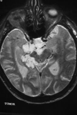 T2-weighted axial image demonstrating a hyperinten
