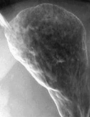 Gastric Carcinoma Imaging: Overview, Radiography, Computed
