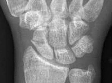 Scaphoid waist fracture with some resorption, as s
