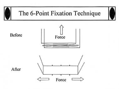 Diagram shows 6-point fixation technique that allo