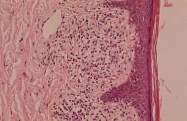 Endothelial cell swelling is a histologic feature
