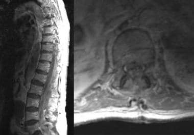 This MRI demonstrates spinal epidural hematoma.