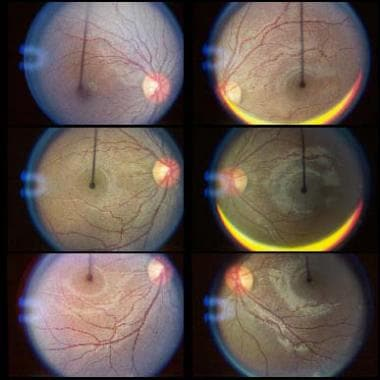 Fundus torsion (direct view). The bottom set of fu