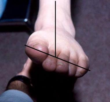 Pes planus (flatfoot). Fixed forefoot varus is cha