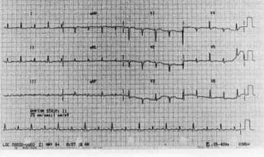 A 12-lead electrocardiogram showing sinus tachycar