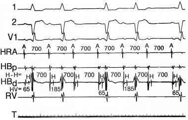 Sinus rhythm with Mobitz I second-degree 3:2 infra