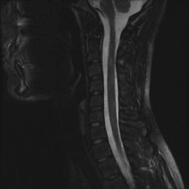 This sagittal T2 image of the cervical spine shows