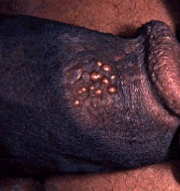 Penile infection with herpes simplex virus type 2