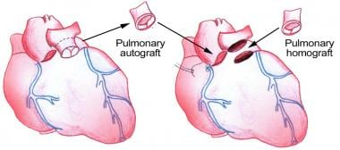 Pulmonary-valve autograft procedure for aortic val