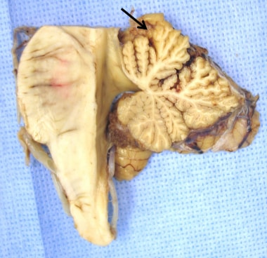 Gross appearance of the cerebellar vermis in alcoh