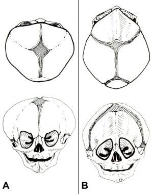 Congenital, synostoses. (A) In brachycephaly, both