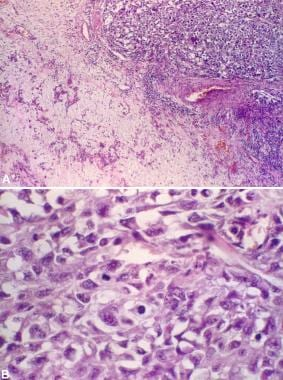 adenoma de próstata 1 cm 40