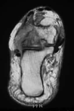 Complete tear of the flexor hallucis longus (FHL)