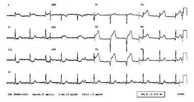 Acute anterior myocardial infarction on ECG.