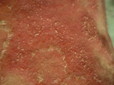 Small pustules on erythematous patch (acute genera