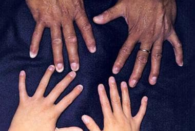 Hands of father and son with Rapp-Hodgkin syndrome