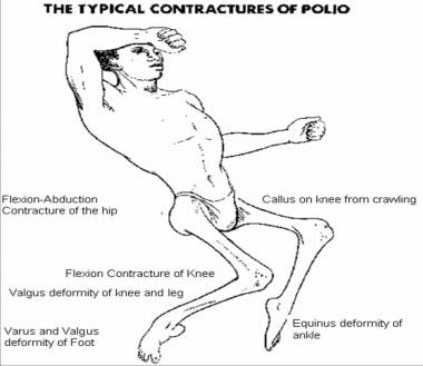 Typical contractures of postpolio residual paralys