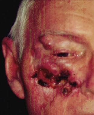 A 68-year-old patient presenting with an advanced