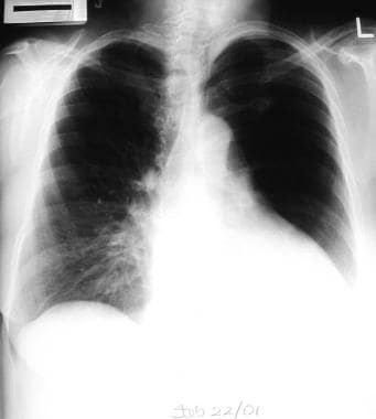 Emphysema. The differential diagnosis of a unilate