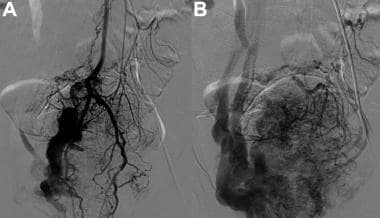 Angiogram of a rectal arteriovenous malformation (