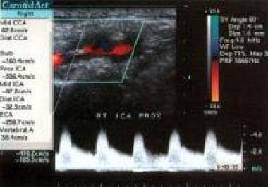 Color flow duplex ultrasonogram reveals 80-99% lef