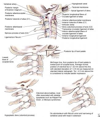 Atlantooccipital junction.