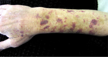 Purpura from Waldenström macroglobulinemia is evid