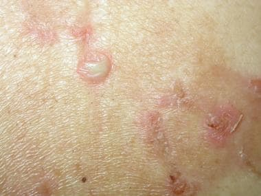 Circinate plaques and pustules on nonerythematous