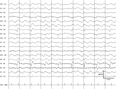 Pseudoperiodic lateralized epileptiform discharges
