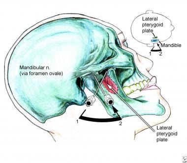 Anatomy of mandibular block and needle insertion t