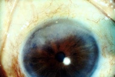 Iris pearls and avascular keratitis in Hansen dise