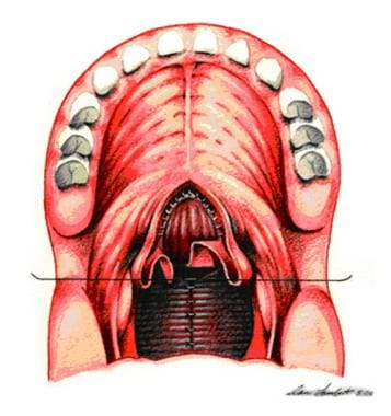 Sutures are placed between pharyngeal flap and nas