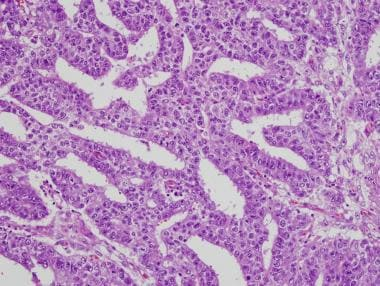 Tubular (glandlike) pattern of embryonal carcinoma