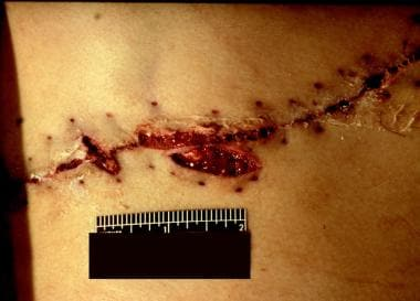 A previously sutured surgical incision is shown af