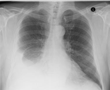 Chest radiography of patient with right pleural ef