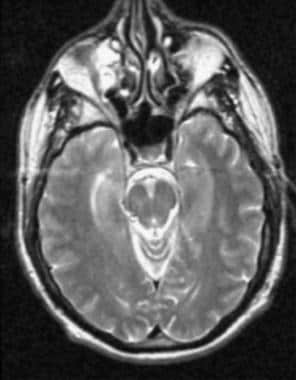 Axial magnetic resonance image in a 59-year-old pa