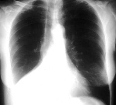 Chest radiograph demonstrating a right lower lobe