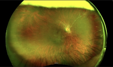 Wide-field fundus photograph illustrating numerous