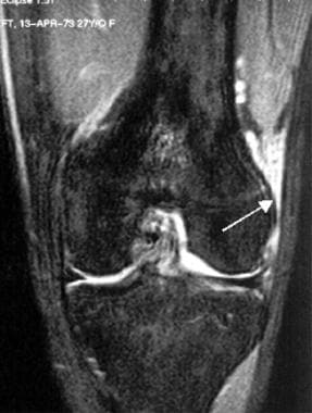 Extensor mechanism injuries of the knee. In this 2