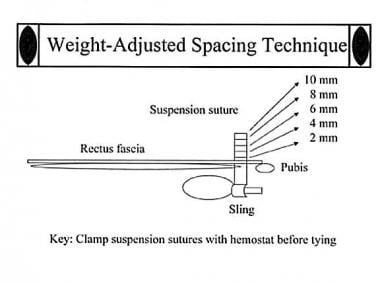 Weight-adjusted spacing nomogram. To tie suspensio
