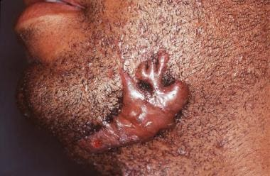 Clawlike outline of a keloid. Courtesy of Dirk M.