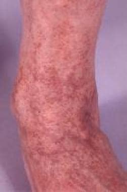 Capillaritis affecting the lower legs is known as