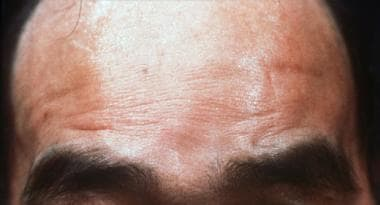 The forehead of this patient with Kennedy disease