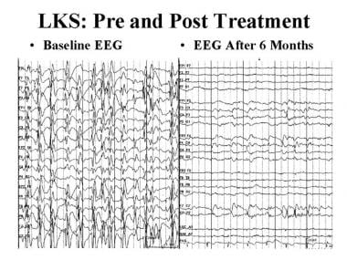 Epileptic and epileptiform encephalopathies. EEG i
