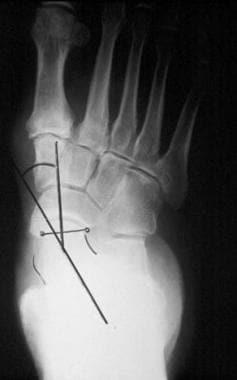 Pes planus (flatfoot). Standing anteroposterior ra